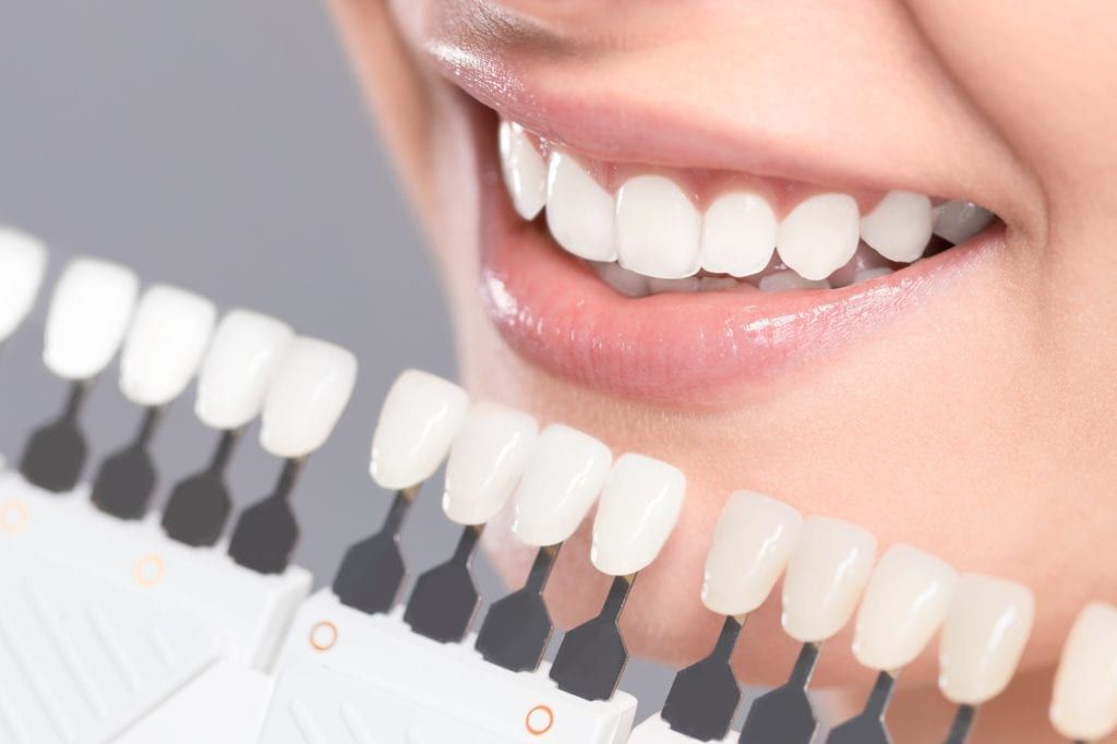 teeth whitening with shade guide