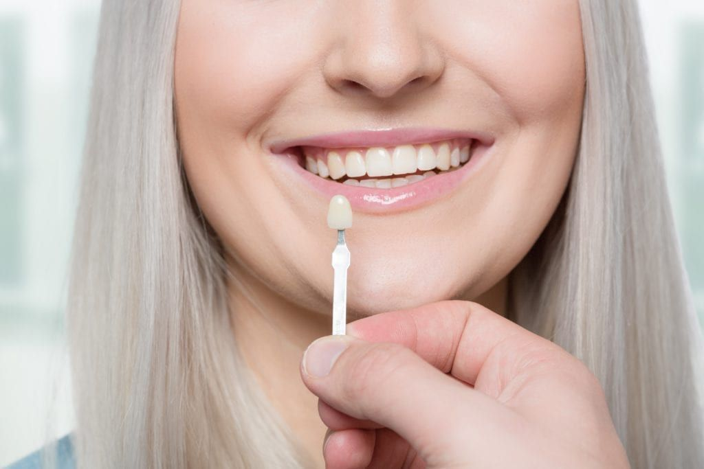woman being fit for veneers