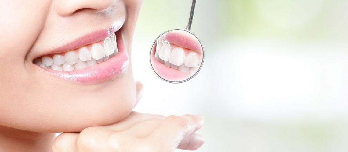 Women smiling while checking teeth