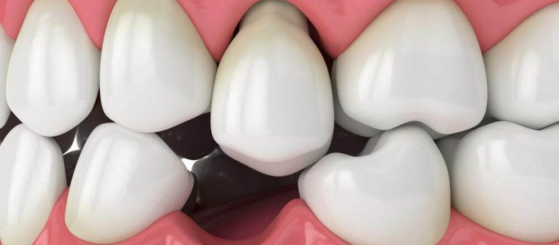 Protruding-Teeth-and-Dental-Injuries